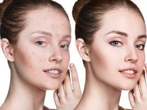 آموزش روتوش پوست صورت در فوتوشاپ